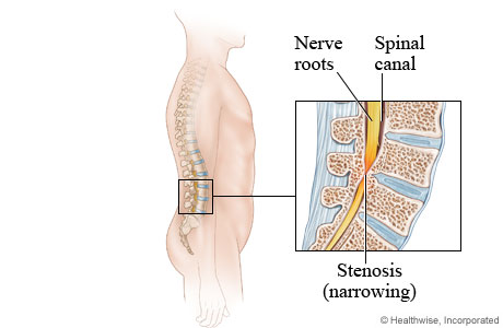 Image of a spine with stenosis