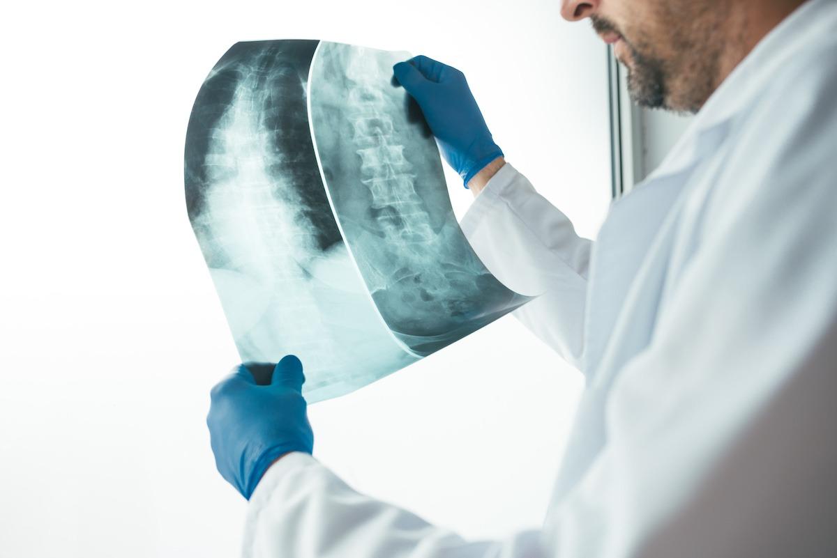 chiropractor spinal decompression